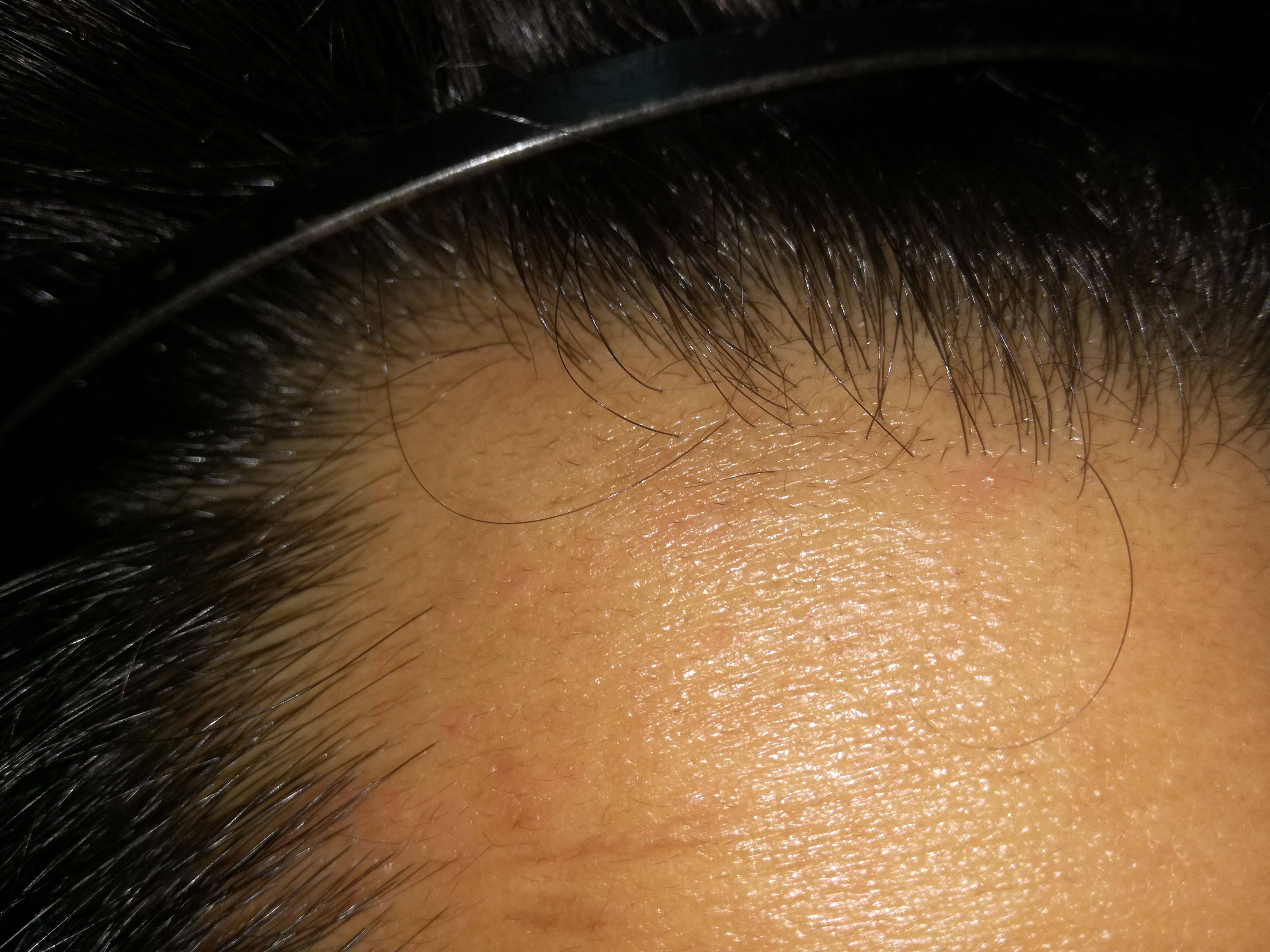 Click On These Pictures And Examine Hairline To See New Hairs